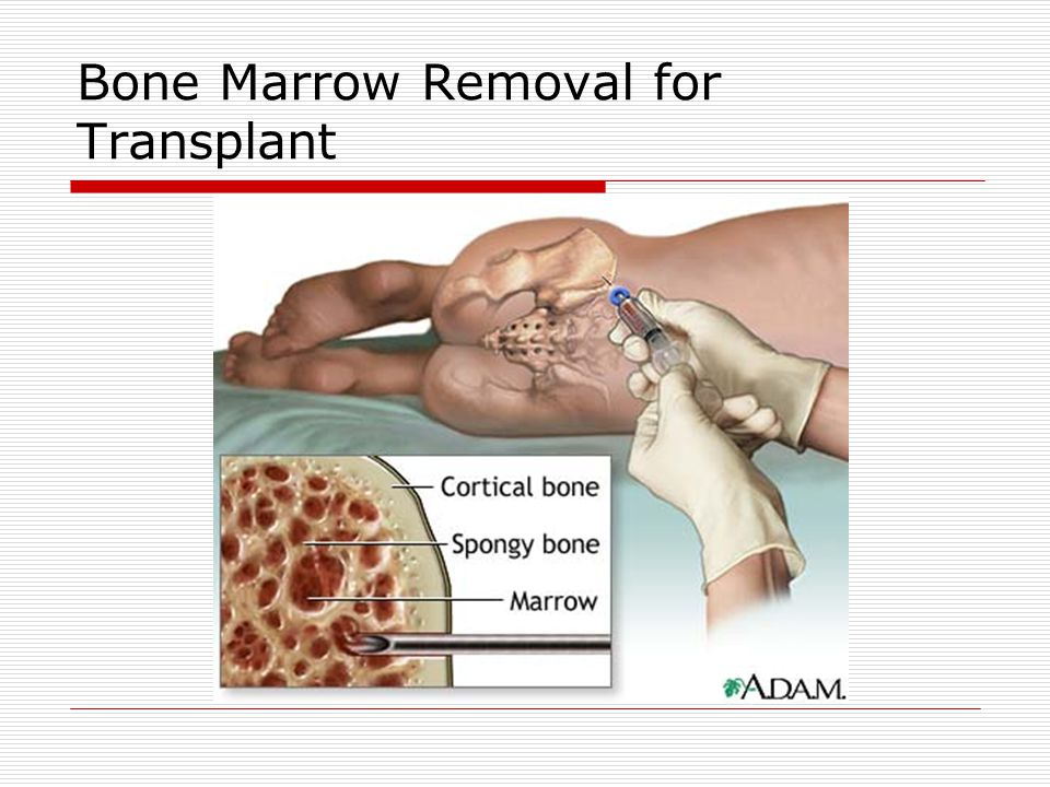 Bone Marrow Removal for Transplant