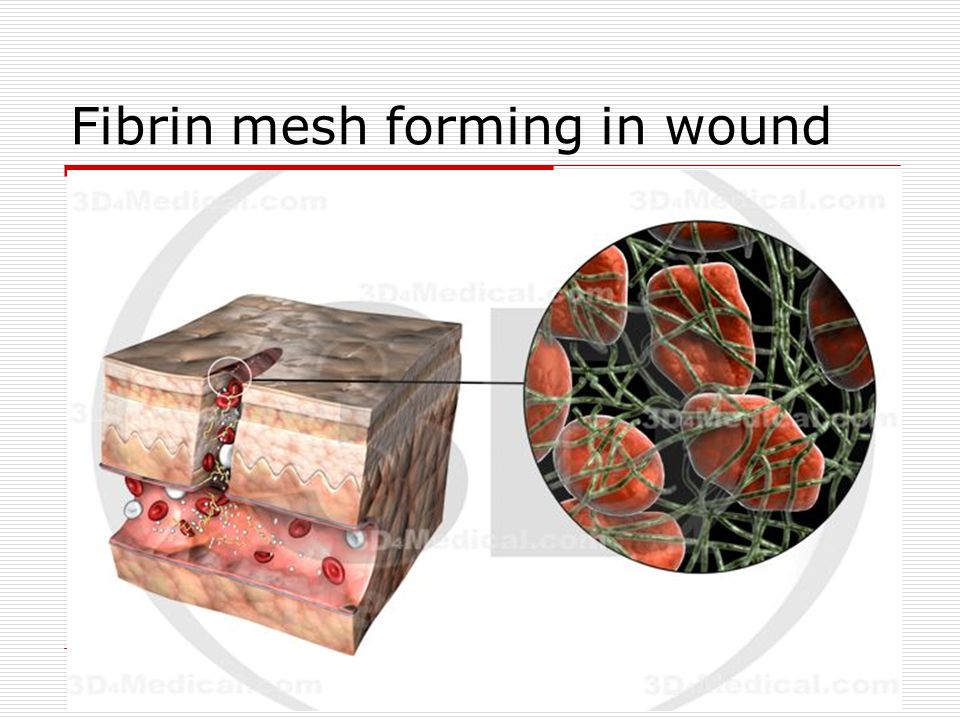 Fibrin mesh forming in wound