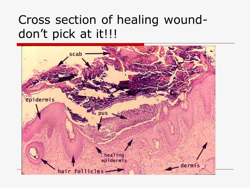 Cross section of healing wound-don't pick at it!!!