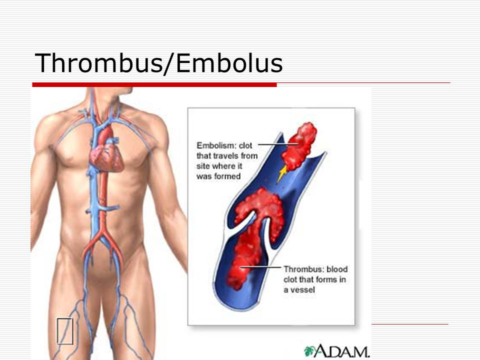 Thrombus/Embolus