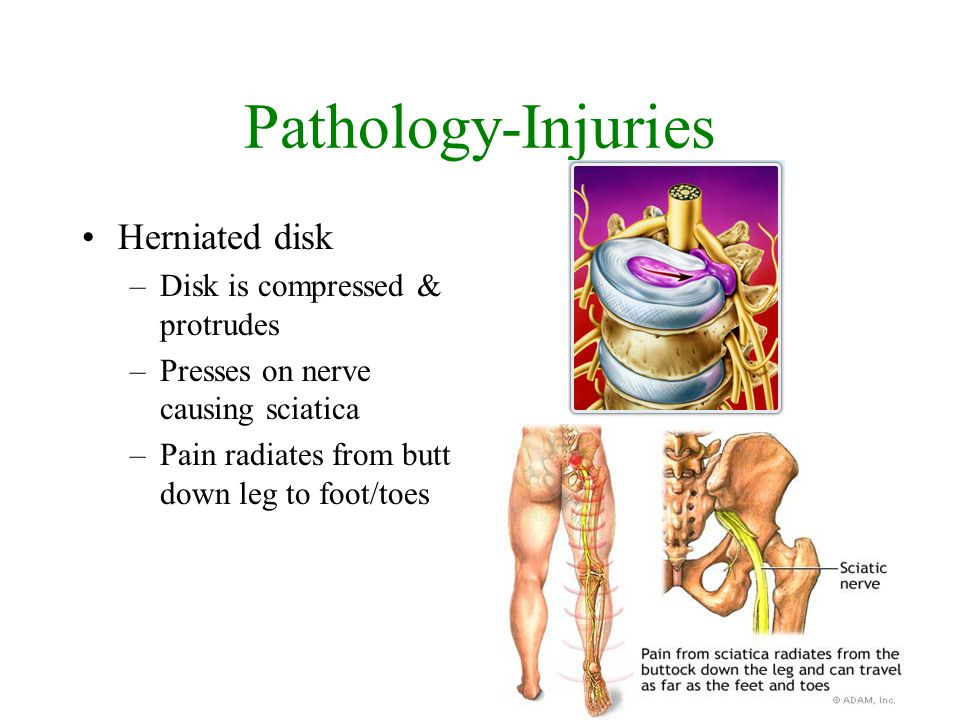 Pathology-Injuries Herniated disk Disk is compressed & protrudes