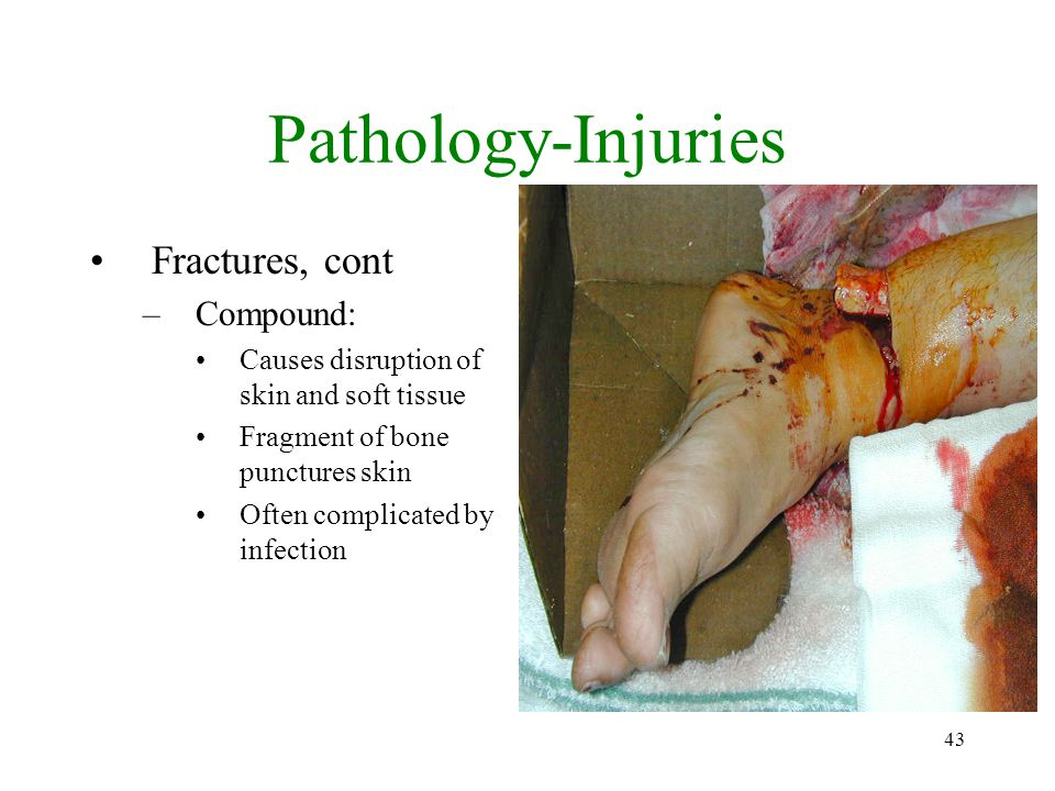 Pathology-Injuries Fractures, cont Compound: