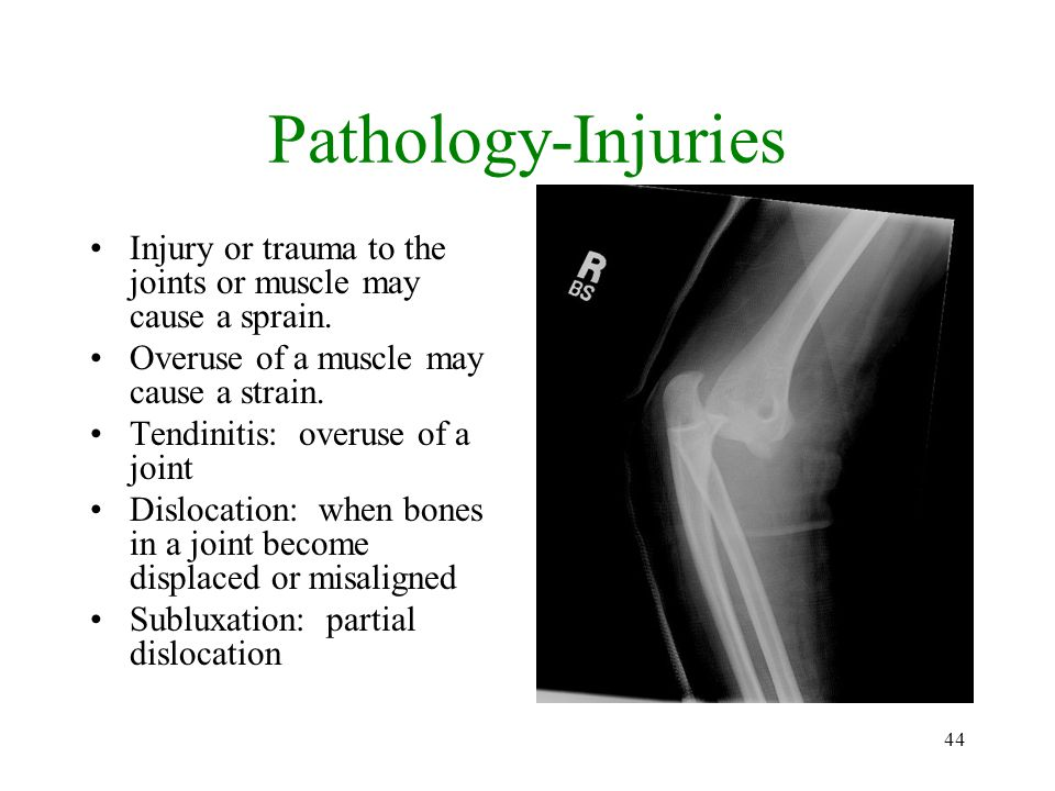 Pathology-Injuries Injury or trauma to the joints or muscle may cause a sprain. Overuse of a muscle may cause a strain.