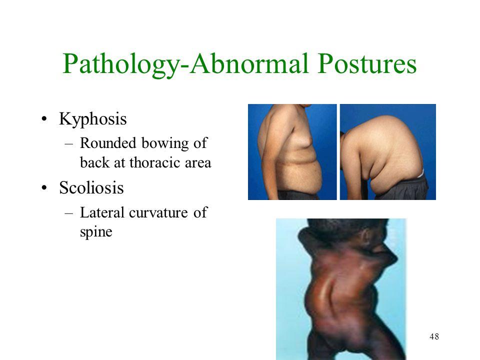 Pathology-Abnormal Postures