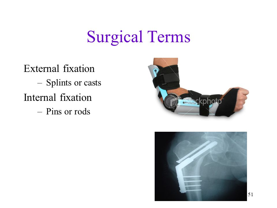 Surgical Terms External fixation Internal fixation Splints or casts