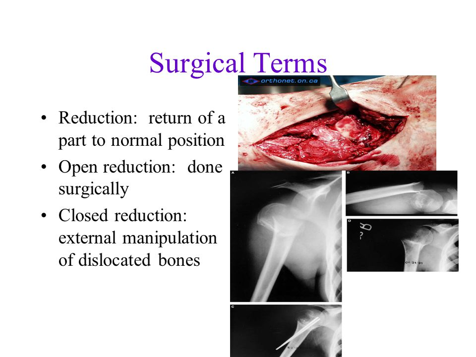 Surgical Terms Reduction: return of a part to normal position