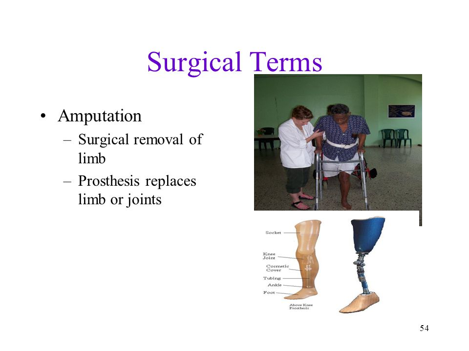 Surgical Terms Amputation Surgical removal of limb