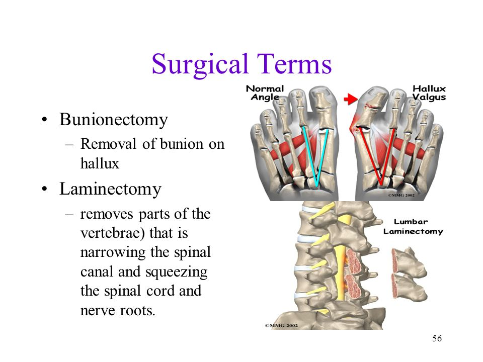Surgical Terms Bunionectomy Laminectomy Removal of bunion on hallux