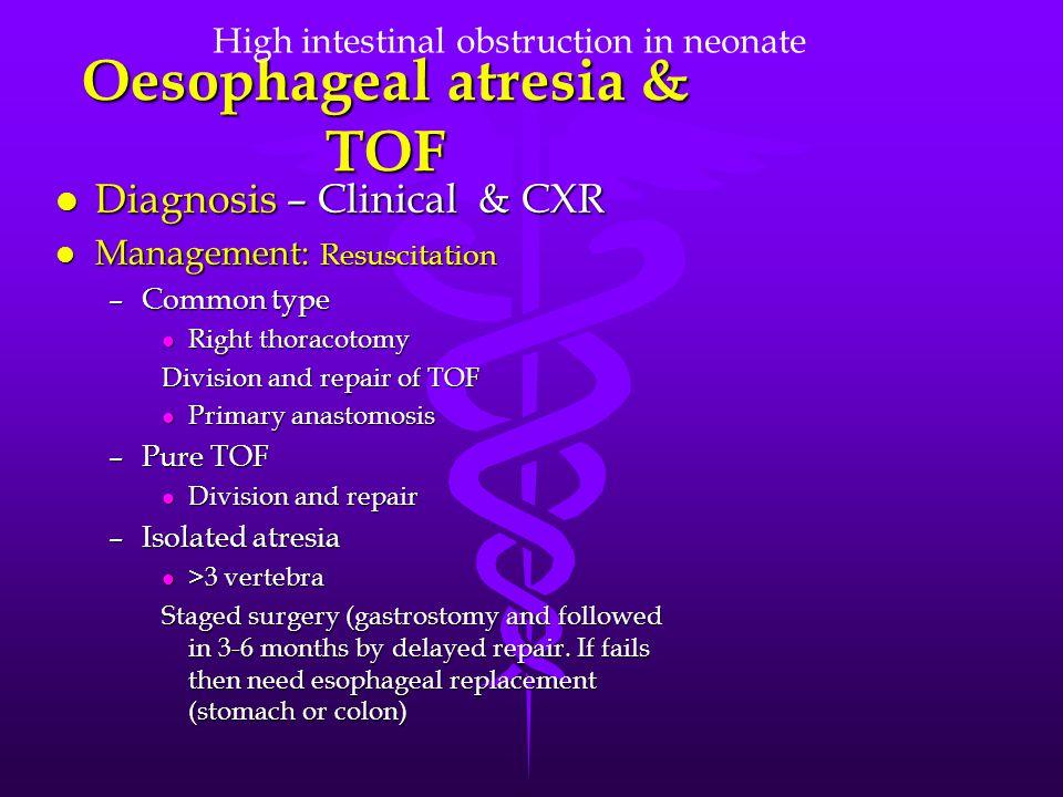 Oesophageal atresia & TOF
