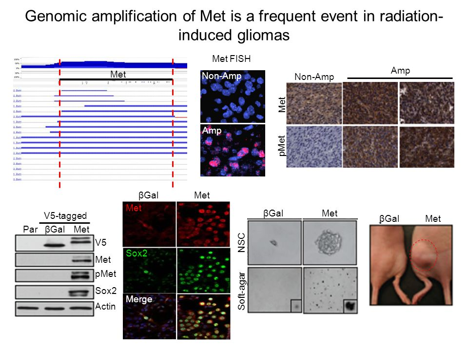 Genomic amplification of Met is a frequent event in radiation-induced gliomas