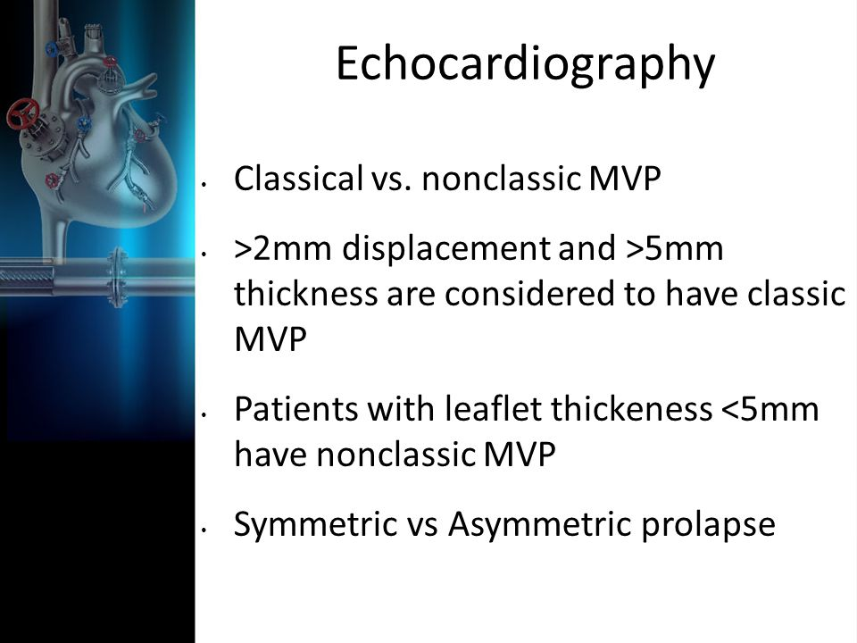 Echocardiography Classical vs. nonclassic MVP