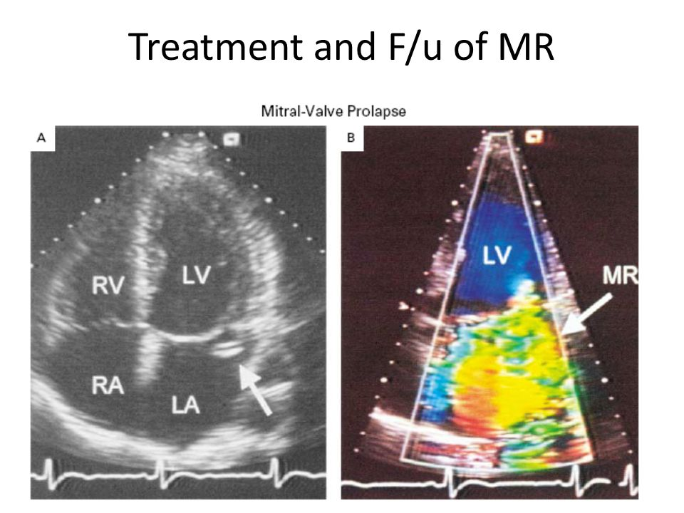 Treatment and F/u of MR 27