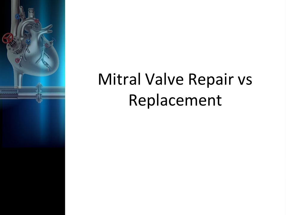 Mitral Valve Repair vs Replacement