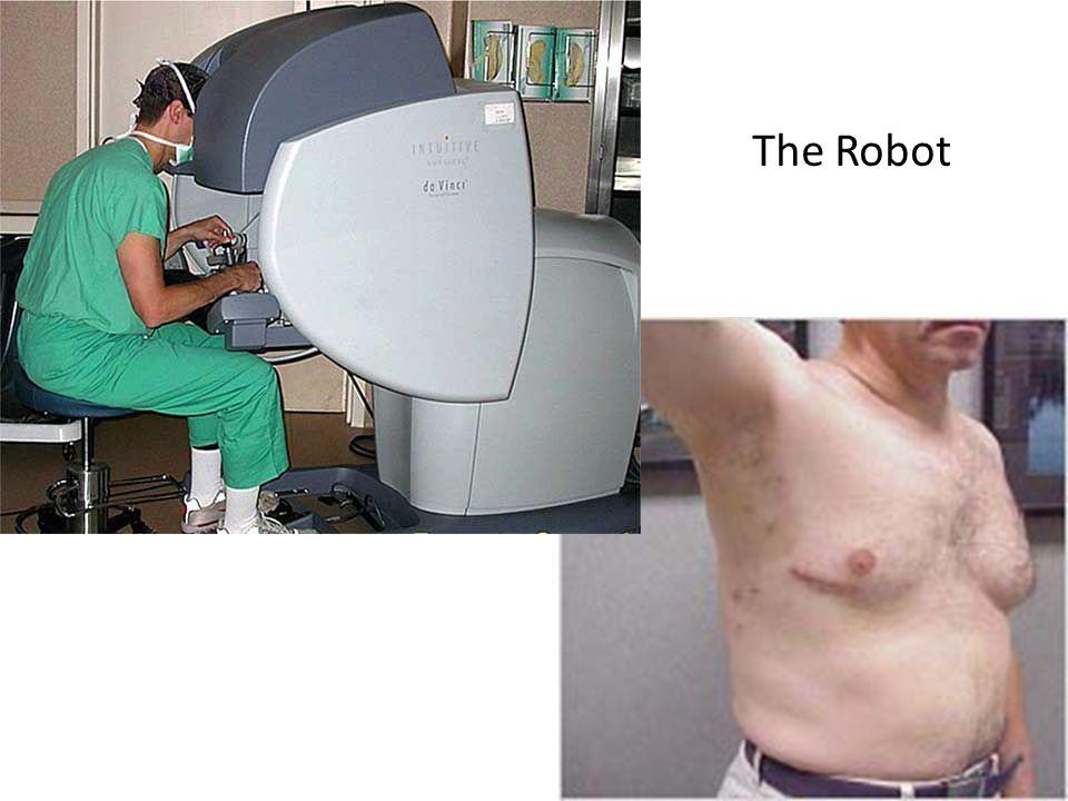 The Robot 41