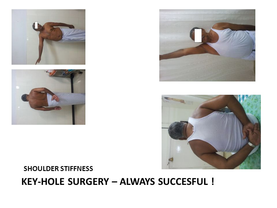 KEY-HOLE SURGERY – ALWAYS SUCCESFUL !