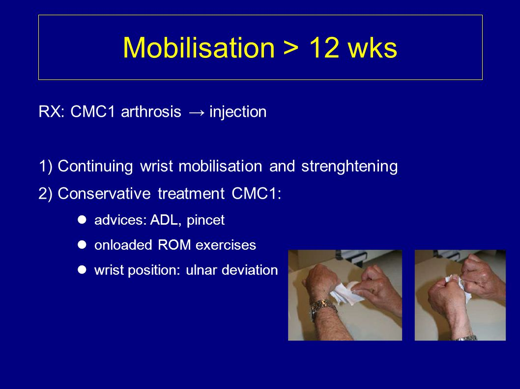 Mobilisation > 12 wks RX: CMC1 arthrosis → injection