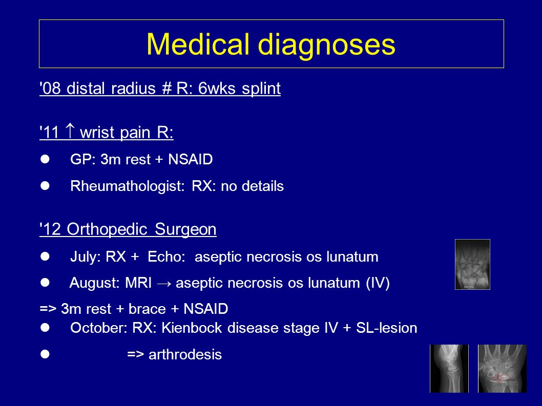 Medical diagnoses 08 distal radius # R: 6wks splint