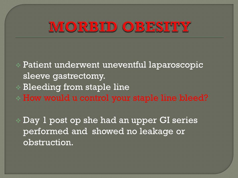 MORBID OBESITY Patient underwent uneventful laparoscopic sleeve gastrectomy. Bleeding from staple line.