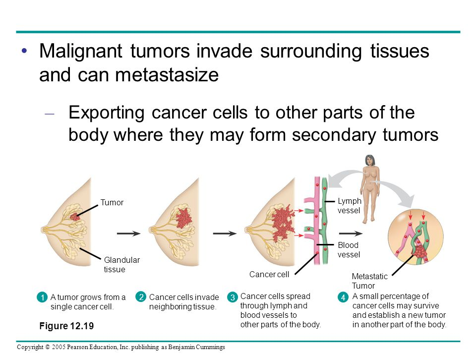 Malignant tumors invade surrounding tissues and can metastasize