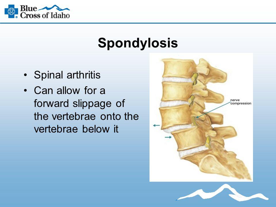 Spondylosis Spinal arthritis