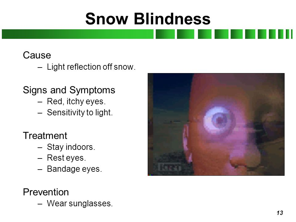 Snow Blindness Cause Signs and Symptoms Treatment Prevention