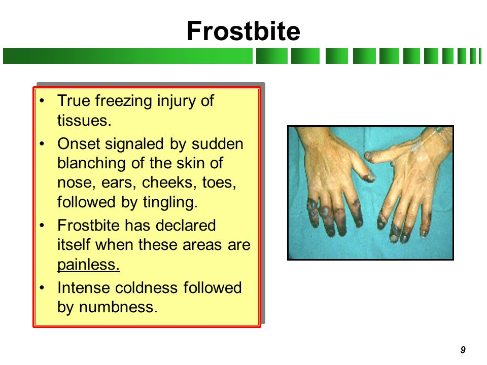 Frostbite True freezing injury of tissues.