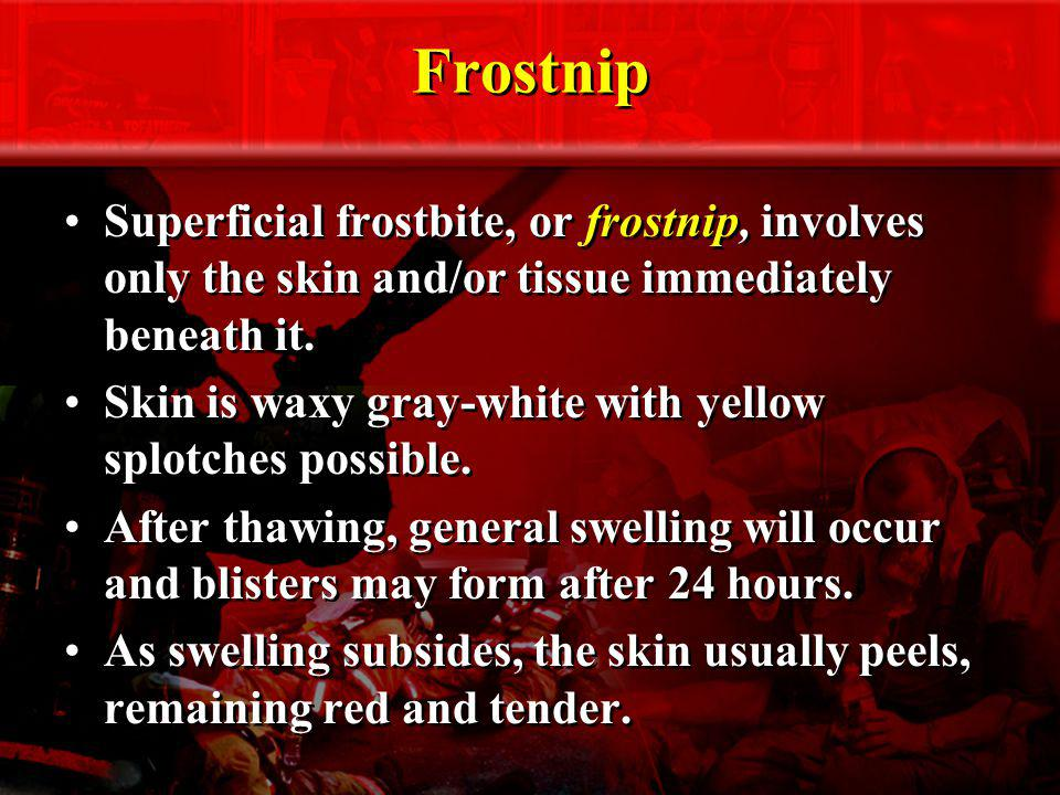 Frostnip Superficial frostbite, or frostnip, involves only the skin and/or tissue immediately beneath it.