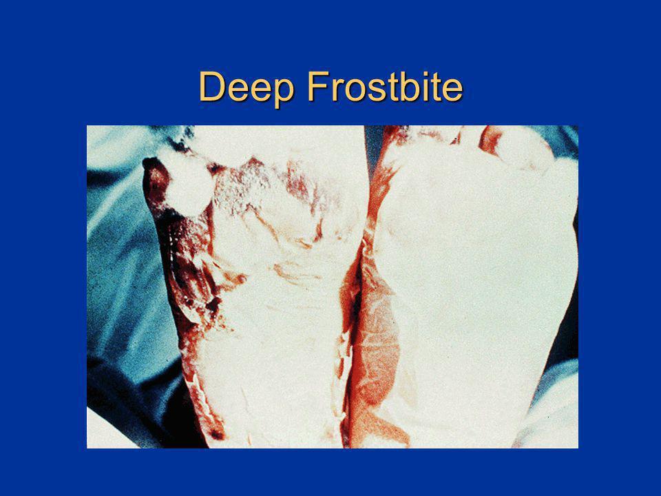 Deep Frostbite Deep frostbite