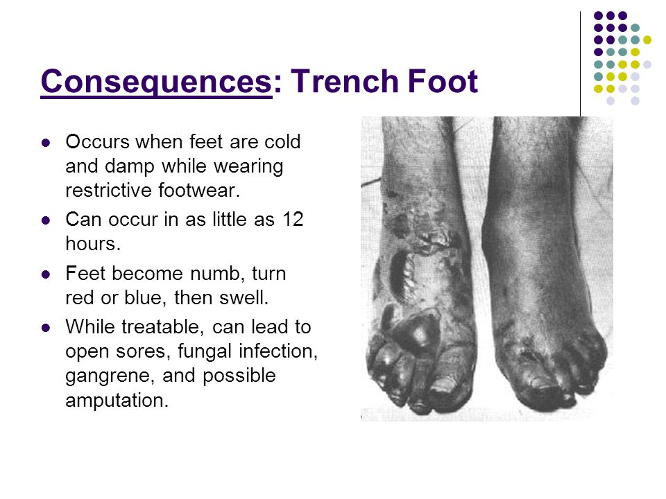 Consequences: Trench Foot