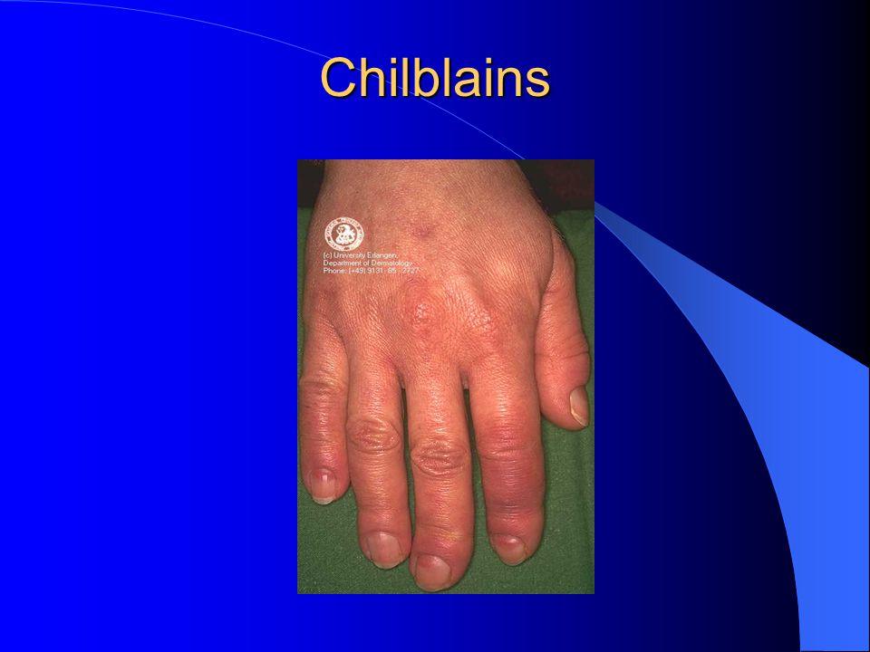 Chilblains