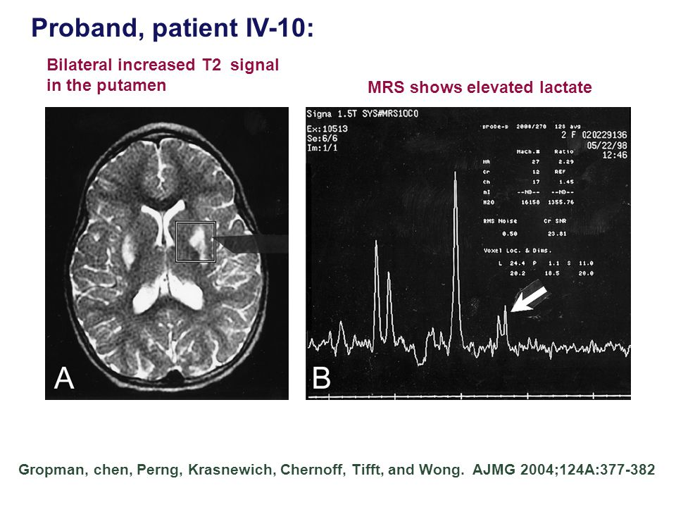 Proband, patient IV-10: Bilateral increased T2 signal in the putamen