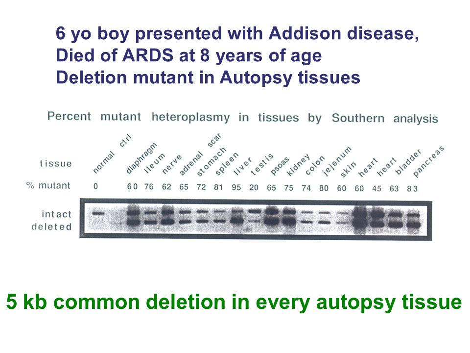 5 kb common deletion in every autopsy tissue