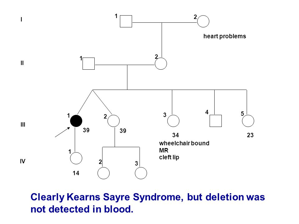 Clearly Kearns Sayre Syndrome, but deletion was not detected in blood.