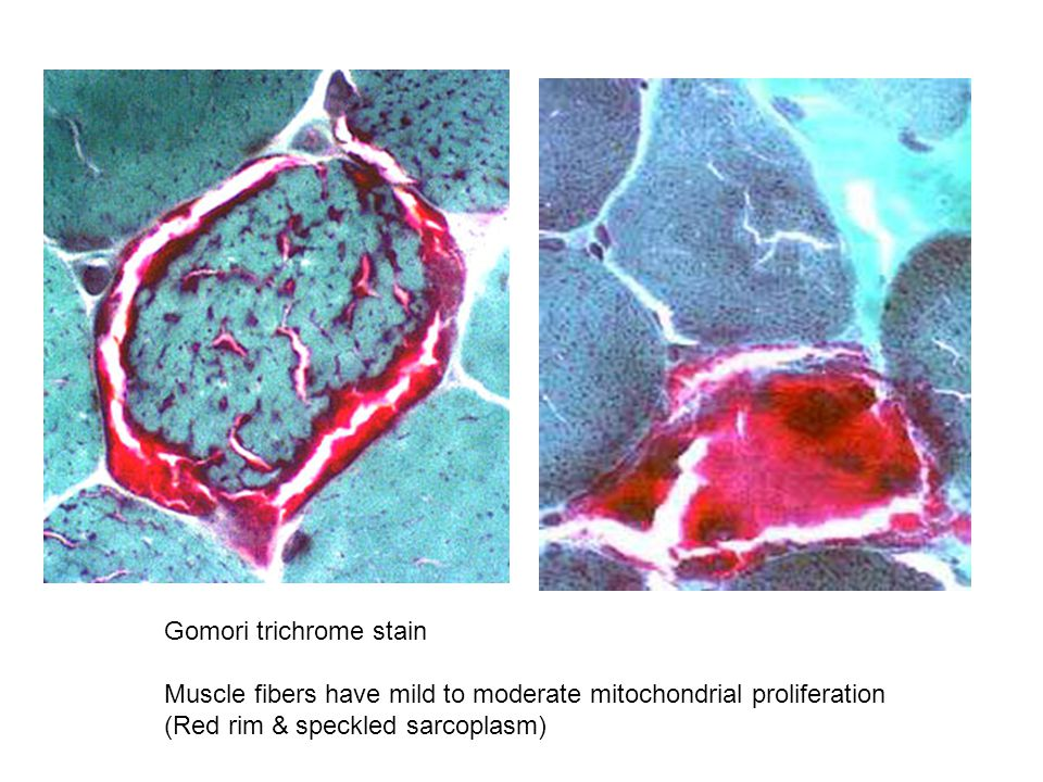 Gomori trichrome stain Muscle fibers have mild to moderate mitochondrial proliferation (Red rim & speckled sarcoplasm)