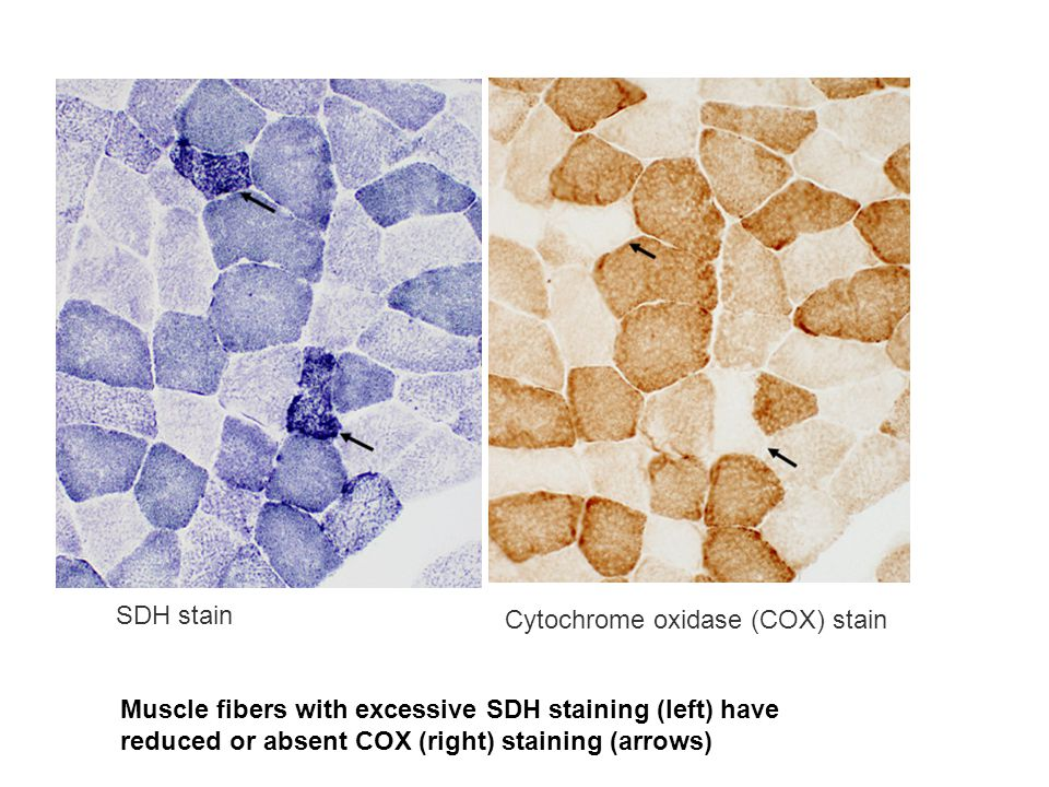 SDH stain Cytochrome oxidase (COX) stain.