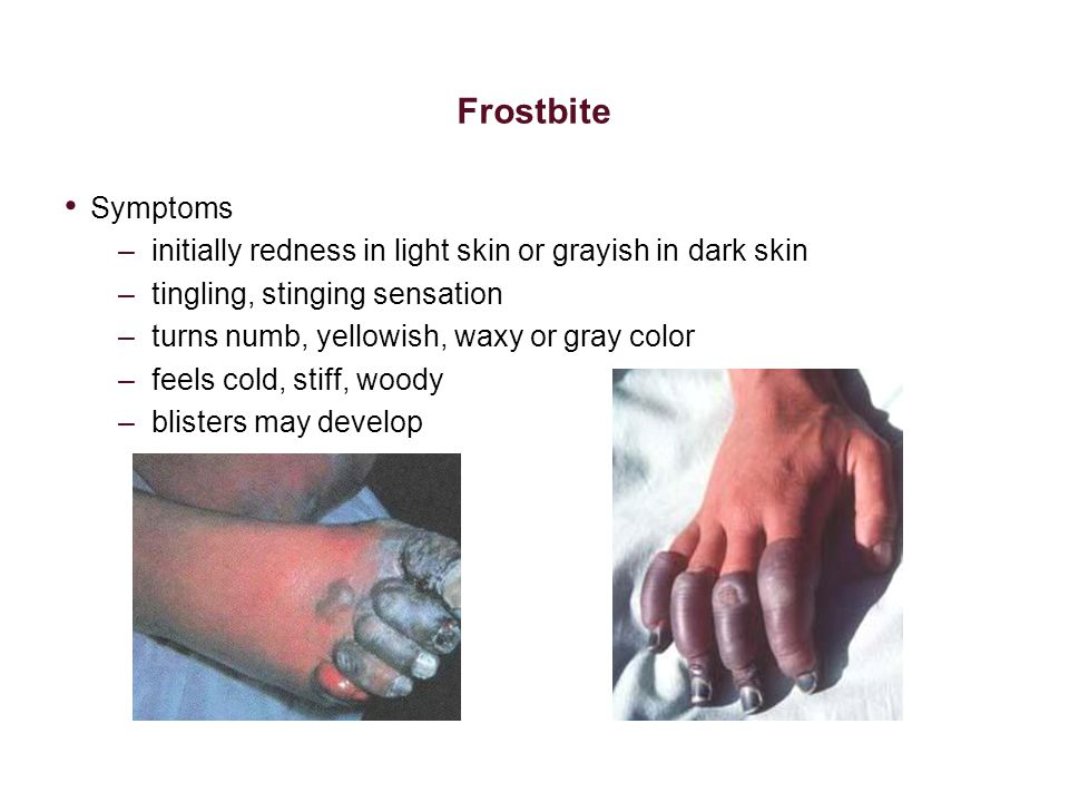 Frostbite Symptoms. initially redness in light skin or grayish in dark skin. tingling, stinging sensation.