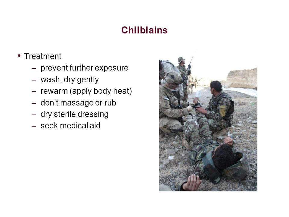 Chilblains Treatment prevent further exposure wash, dry gently