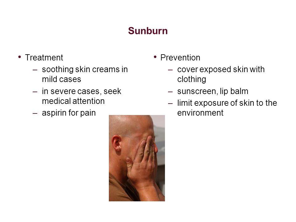 Sunburn Treatment soothing skin creams in mild cases