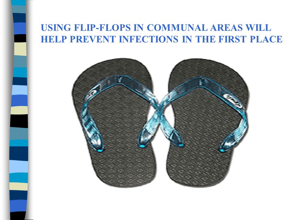 USING FLIP-FLOPS IN COMMUNAL AREAS WILL HELP PREVENT INFECTIONS IN THE FIRST PLACE