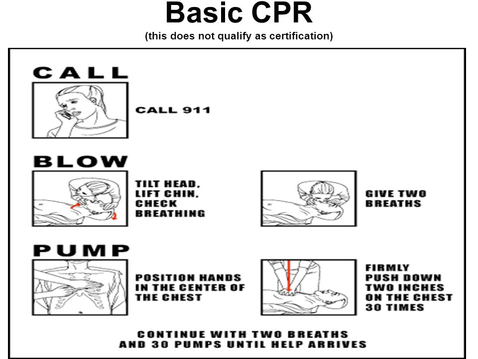 Basic CPR (this does not qualify as certification)