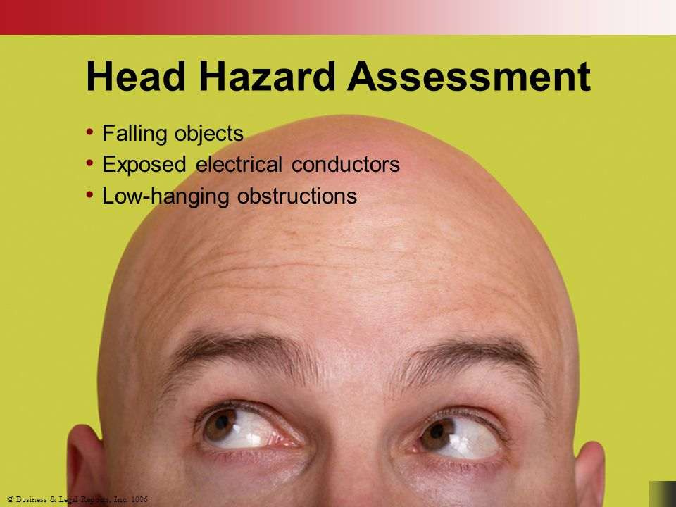 Head Hazard Assessment