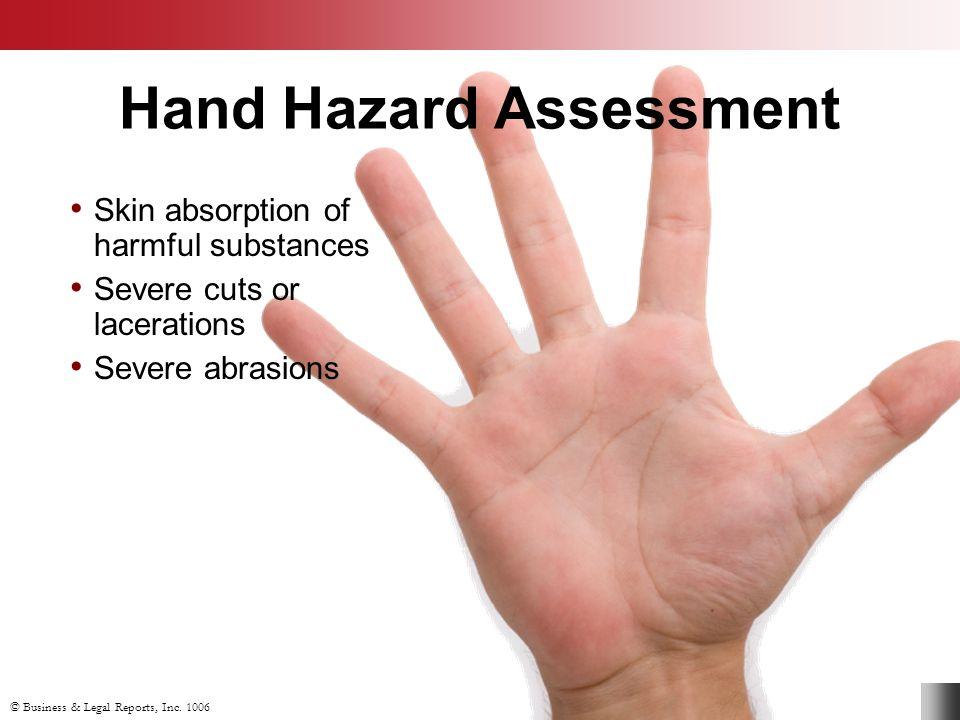 Hand Hazard Assessment