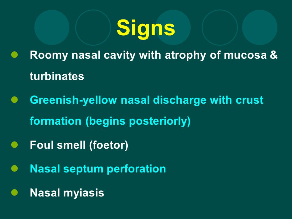 Signs Roomy nasal cavity with atrophy of mucosa & turbinates