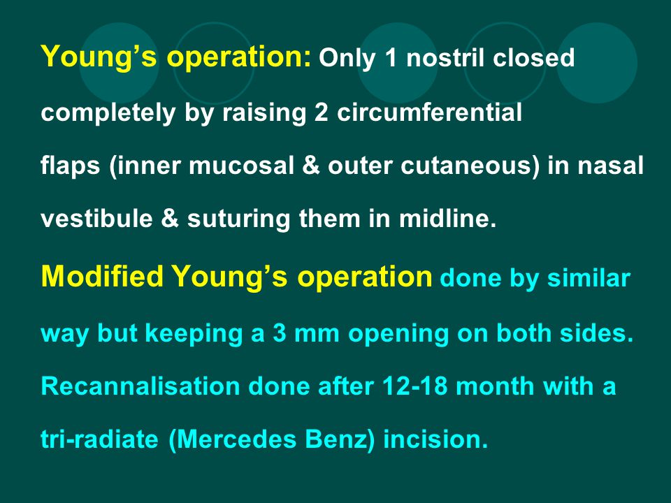 Young's operation: Only 1 nostril closed