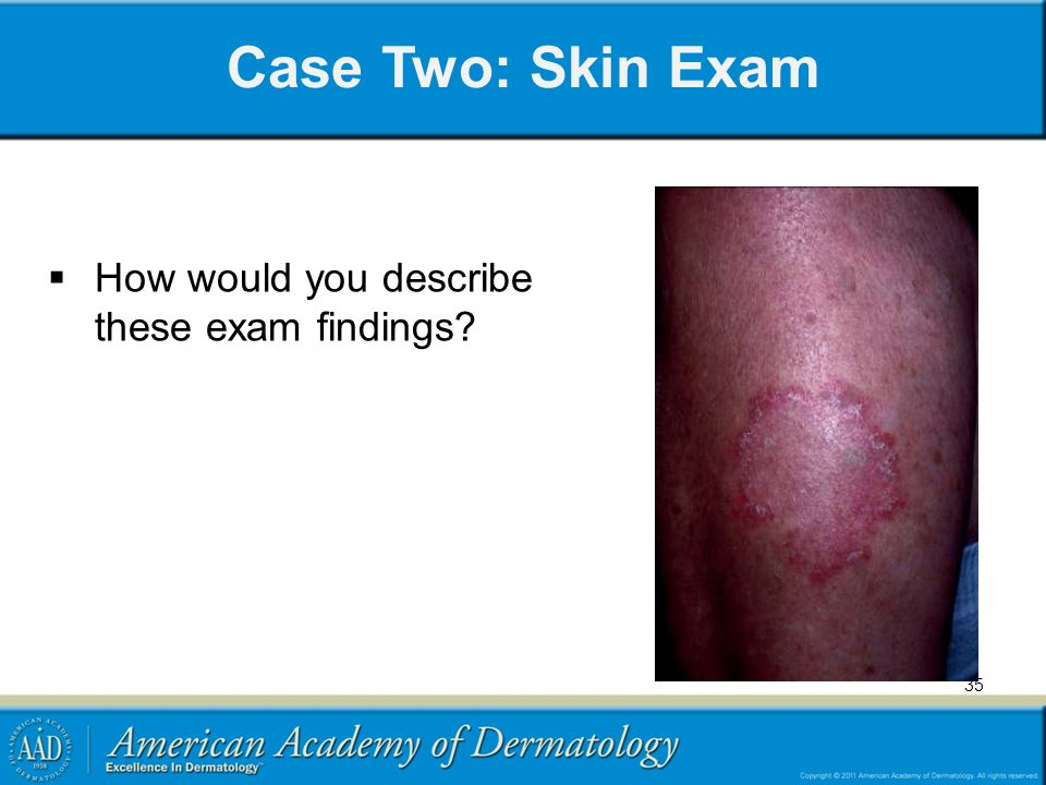 Case Two: Skin Exam How would you describe these exam findings
