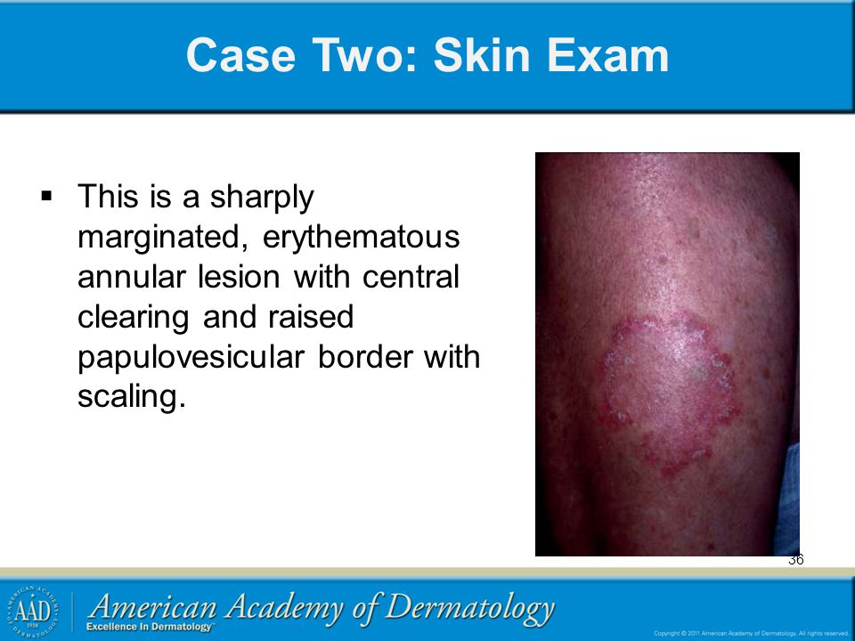 Case Two: Skin Exam This is a sharply marginated, erythematous annular lesion with central clearing and raised papulovesicular border with scaling.