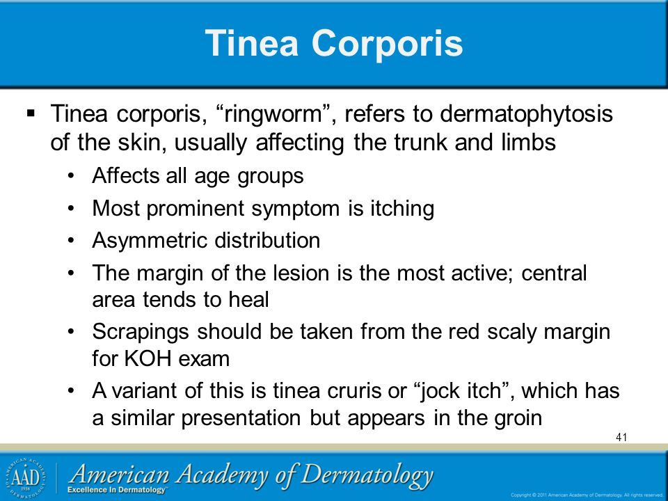 Tinea Corporis Tinea corporis, ringworm , refers to dermatophytosis of the skin, usually affecting the trunk and limbs.