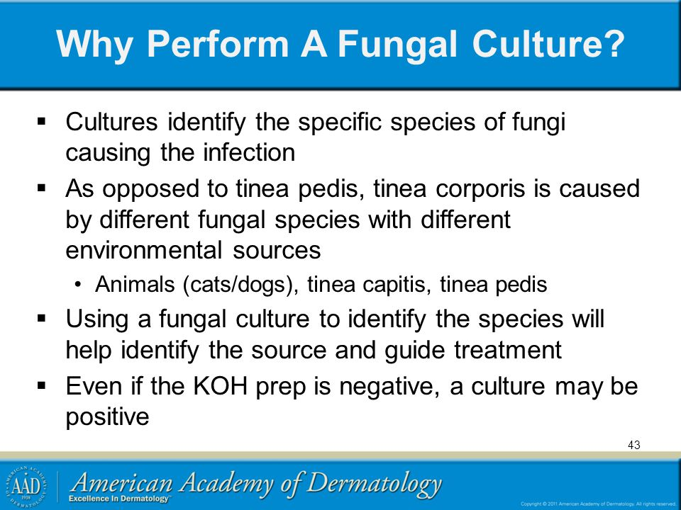 Why Perform A Fungal Culture