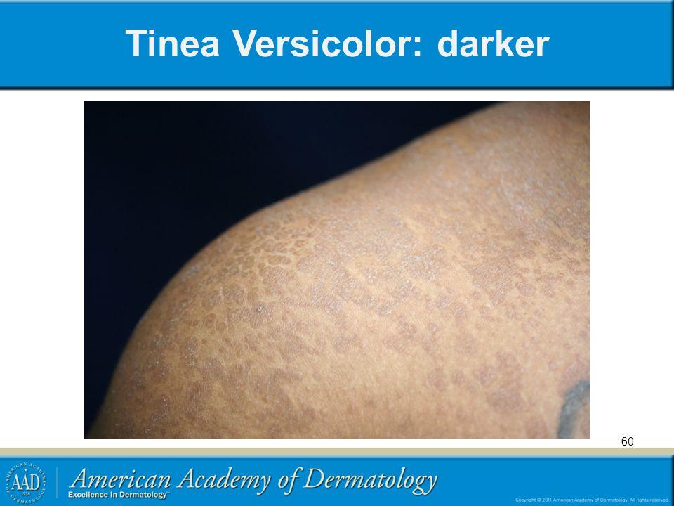 Tinea Versicolor: darker