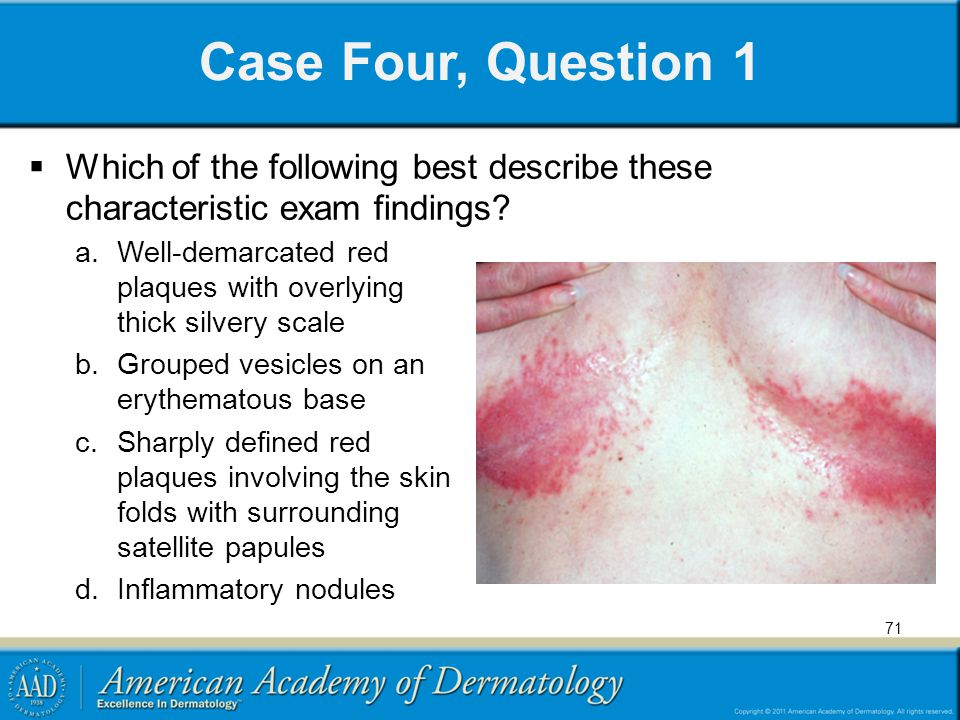 Case Four, Question 1 Which of the following best describe these characteristic exam findings